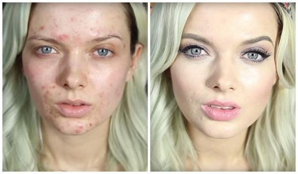 据英国《每日邮报》9月28日报道,英国彩妆博主艾米福特(Em Ford)近日在YouTube上传了一段长约8分钟的化妆视频教程,展示了她如何遮盖脸部瑕疵,并打造出惊艳动人的约会妆容的过程。该视频在网络迅速走红,浏览人次已逾150万。   据悉,艾米在视频中一共使用了18种化妆品,让自己满是痘痘的脸变得洁白无瑕,双眸如猫眼般迷人 1 2 3 4 下一页